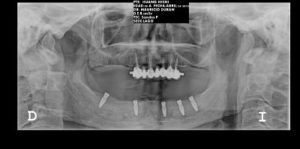 implantes dentales radiografia_opt